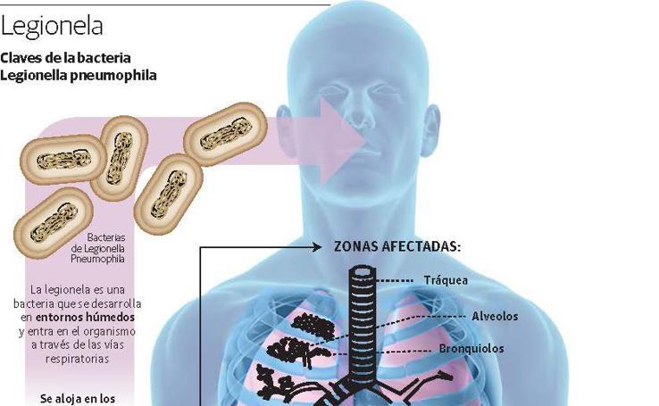 Claves de la bacteria de la Legionela