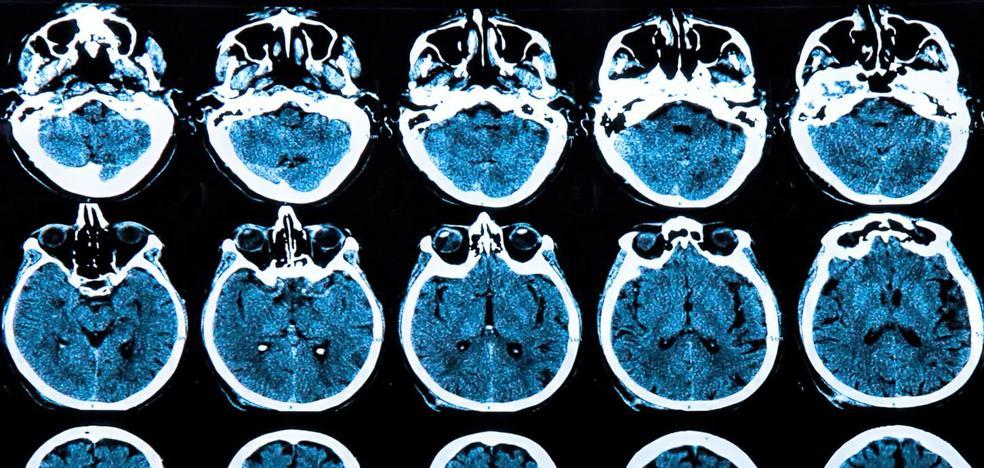Valdecilla investigará las crisis epilépticas en pacientes en coma con daño cerebral