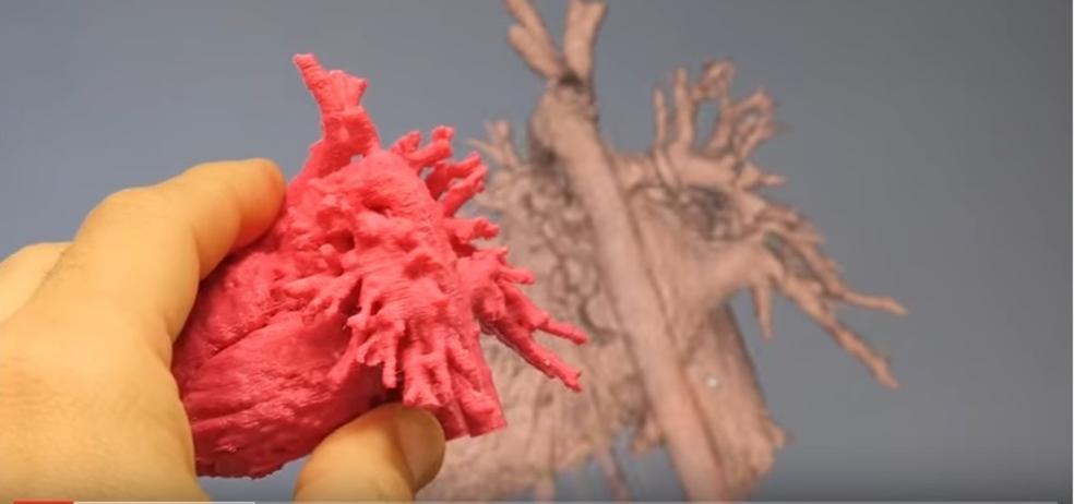 Corazones 3D frente a las cardiopatías congénitas