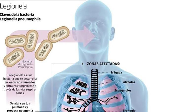 La bacteria de la Legionela