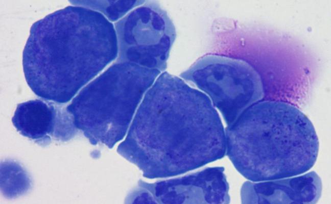 Una terapia con células madre puede ayudar a revertir los efectos de la menopausia prematura y restaurar la fertilidad