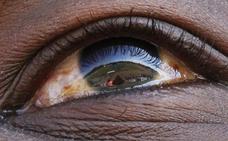 La visión láser, más cerca de llegar al ojo humano