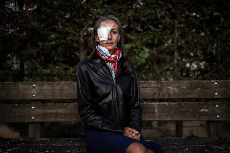 La mujer que recibió un bolazo en el ojo apunta a la organización de la Ryder
