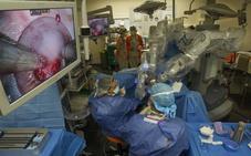 El Gobierno invertirá 3,8 millones en un nuevo robot quirúrgico Da Vinci para Valdecilla