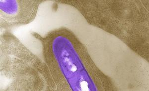 Sanidad no ha podido determinar cómo se infectó de listeria el hombre fallecido en Torrelavega