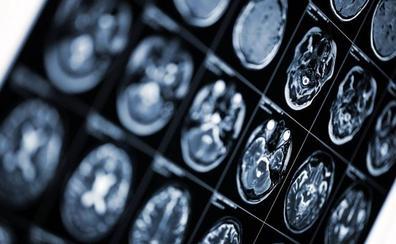 «El Alzheimer mata dos veces y afecta a dos personas, al enfermo y al cuidador»
