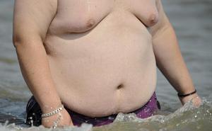 La obesidad sale cara pero prevenirla es rentable