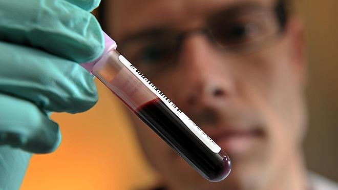 Detectan una cadena de 26 contagios de sida tras localizar al primer transmisor en Euskadi